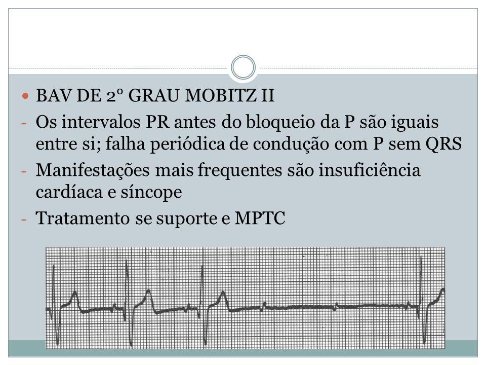 BAV DE 2° GRAU MOBITZ II Os intervalos PR antes do bloqueio da P são iguais entre si; falha periódica de condução com P sem QRS.