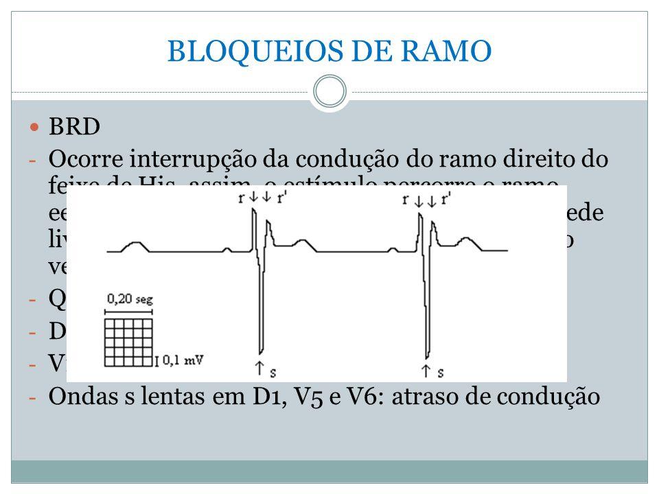 BLOQUEIOS DE RAMO BRD.