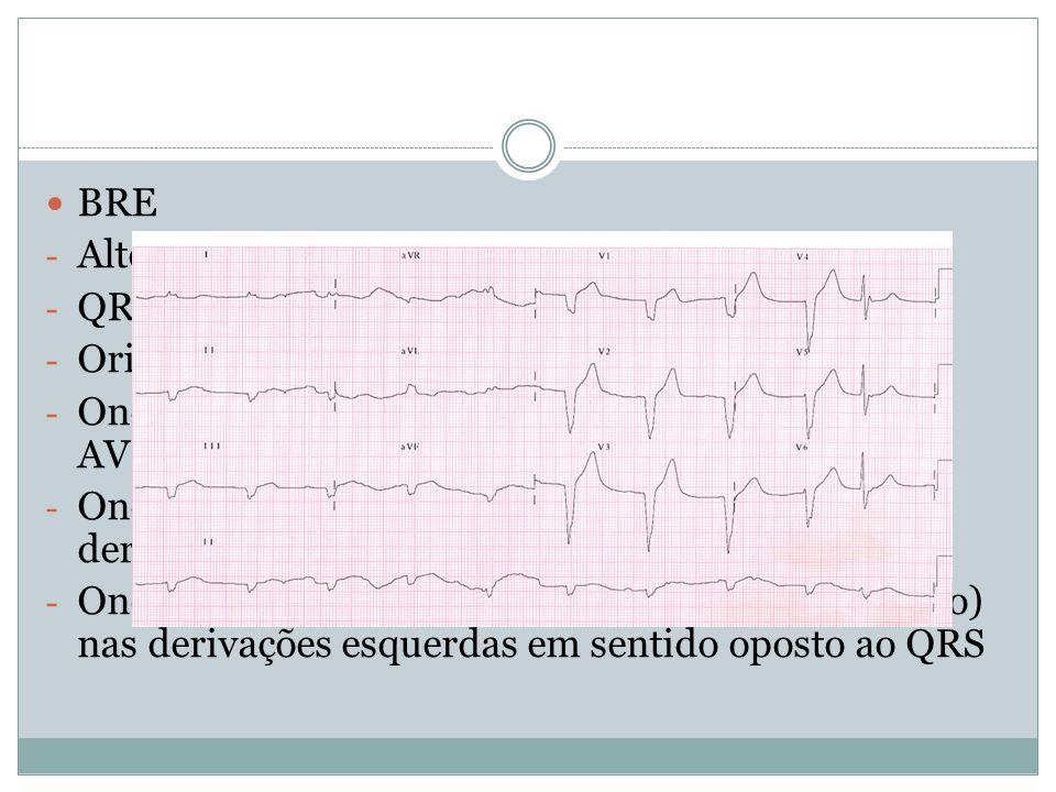 BRE Altera despolarização ventricular desde o início. QRS com duração>120 ms. Orientação para a esquerda e para trás.