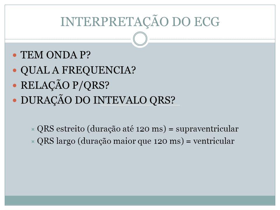 INTERPRETAÇÃO DO ECG TEM ONDA P QUAL A FREQUENCIA RELAÇÃO P/QRS