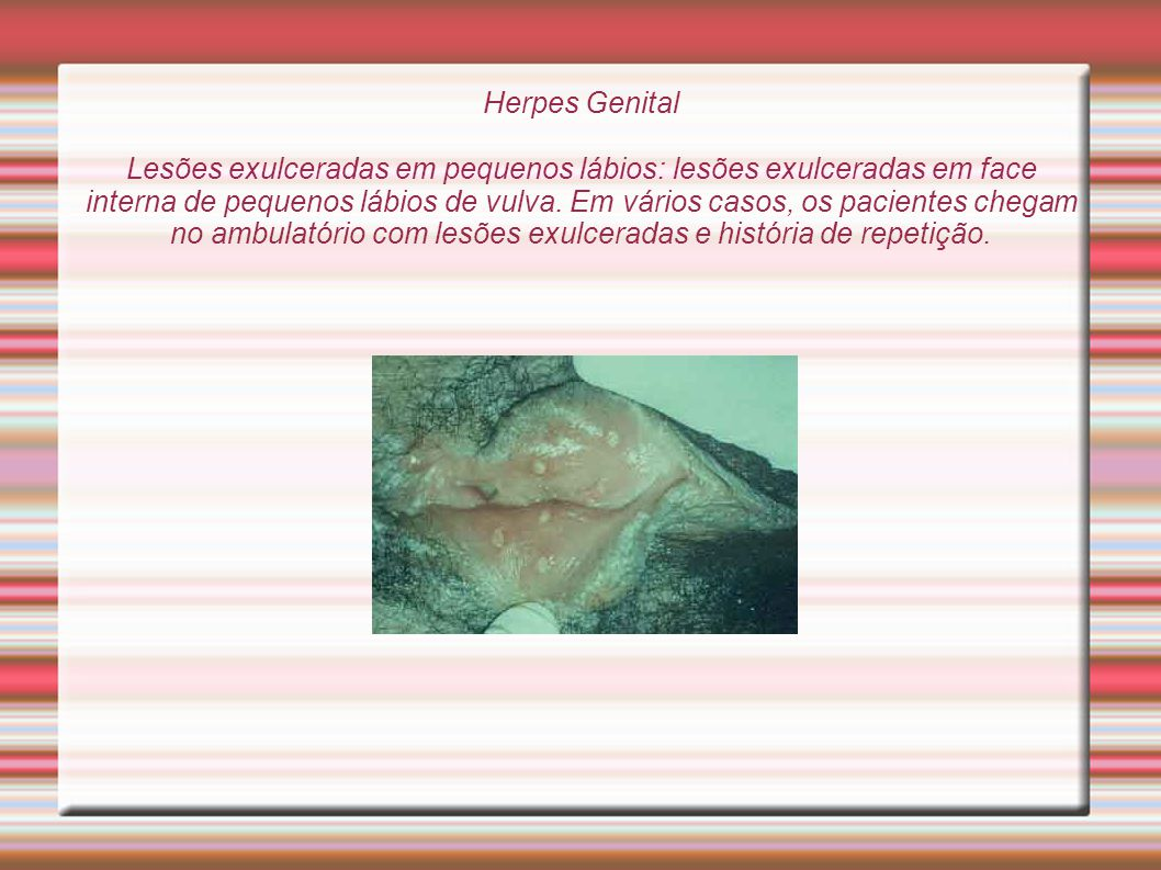 Herpes Genital Lesões exulceradas em pequenos lábios: lesões exulceradas em face interna de pequenos lábios de vulva.