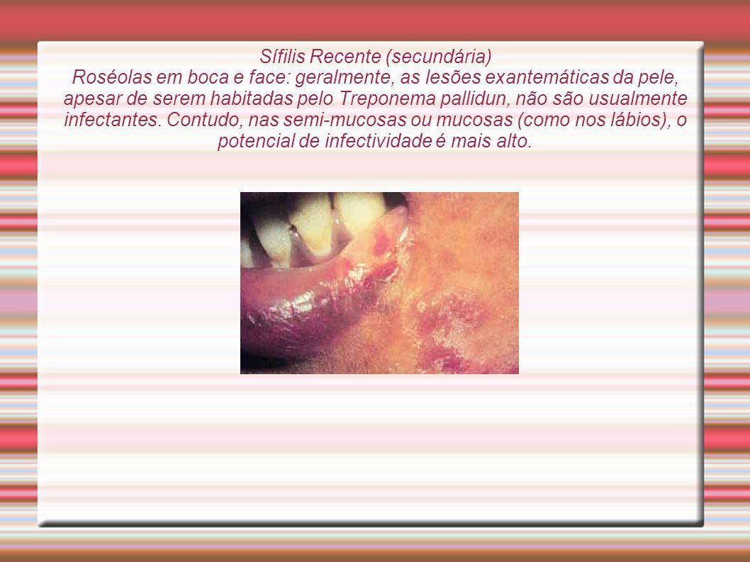 Sífilis Recente (secundária) Roséolas em boca e face: geralmente, as lesões exantemáticas da pele, apesar de serem habitadas pelo Treponema pallidun, não são usualmente infectantes.