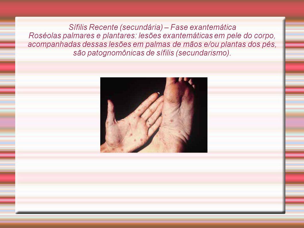 Sífilis Recente (secundária) – Fase exantemática Roséolas palmares e plantares: lesões exantemáticas em pele do corpo, acompanhadas dessas lesões em palmas de mãos e/ou plantas dos pés, são patognomônicas de sífilis (secundarismo).