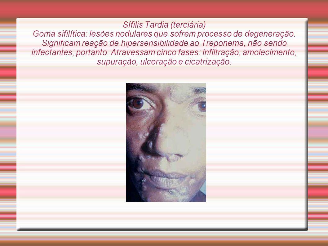 Sífilis Tardia (terciária) Goma sifilítica: lesões nodulares que sofrem processo de degeneração.