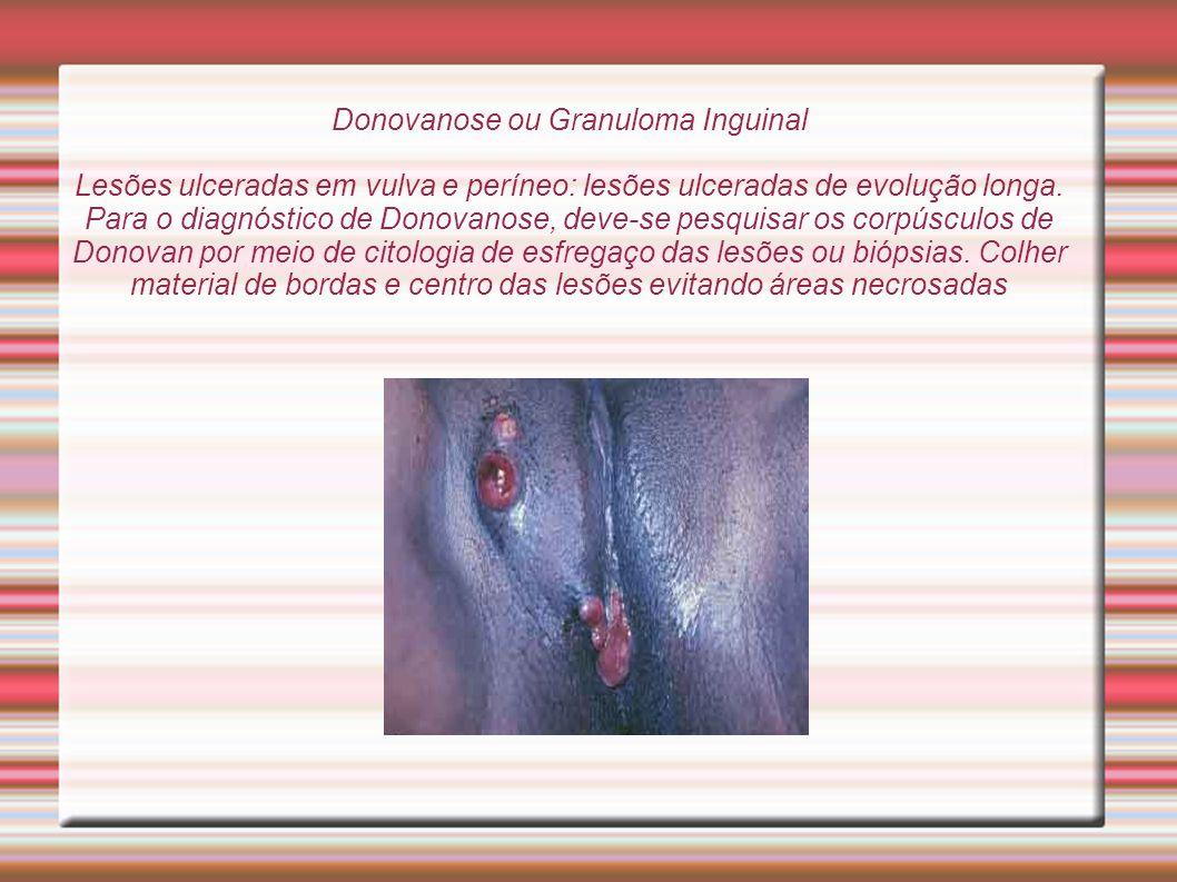 Donovanose ou Granuloma Inguinal Lesões ulceradas em vulva e períneo: lesões ulceradas de evolução longa.