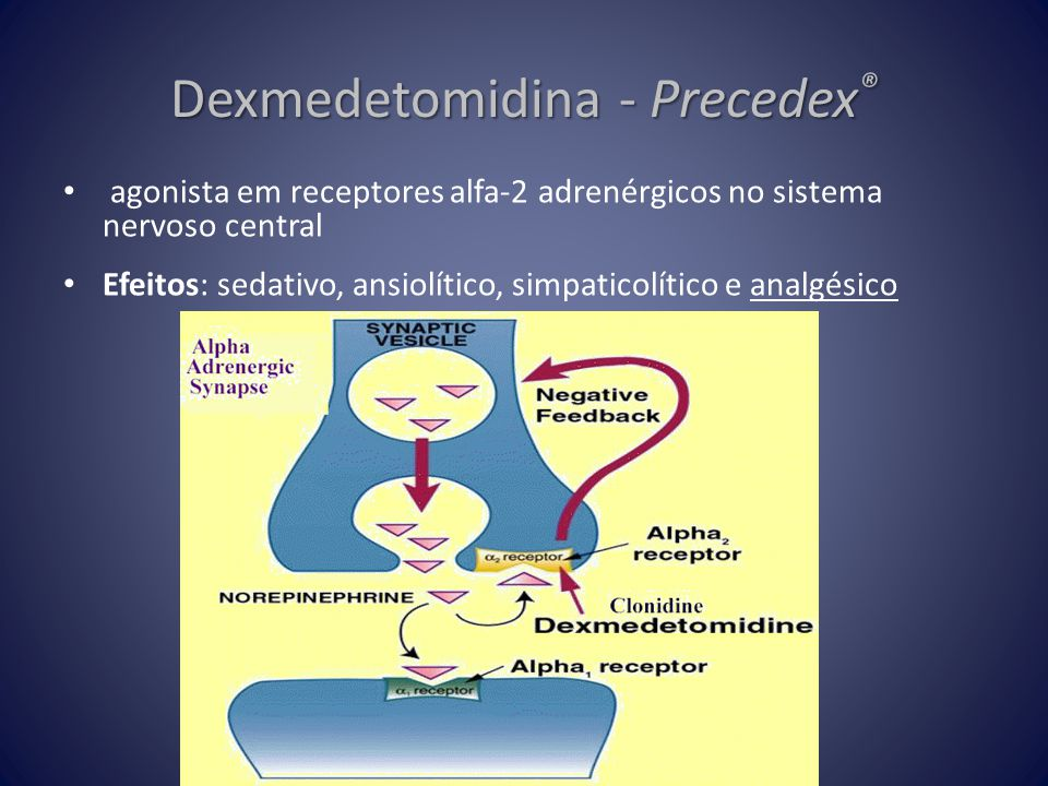 Dexmedetomidina - Precedex®