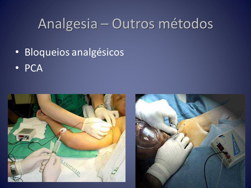 Analgesia – Outros métodos
