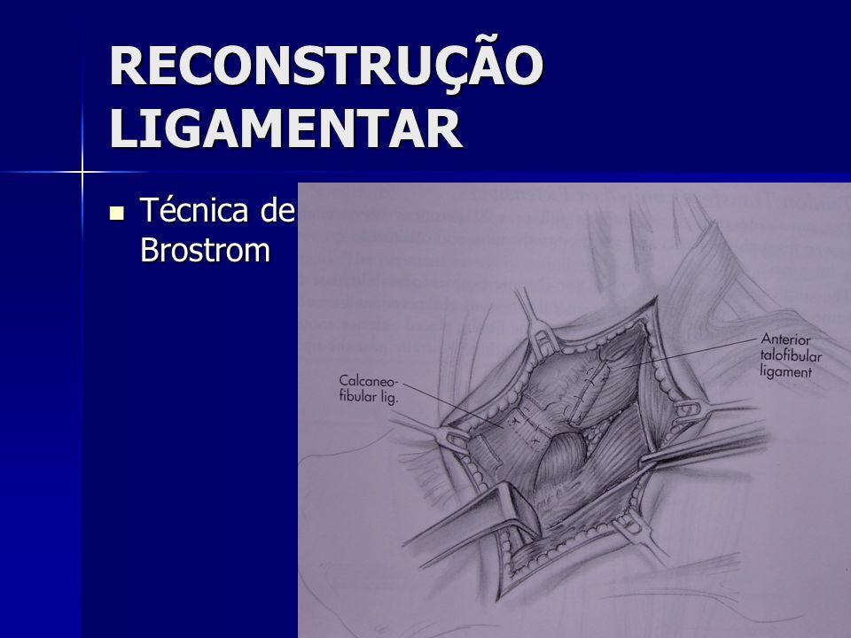 RECONSTRUÇÃO LIGAMENTAR