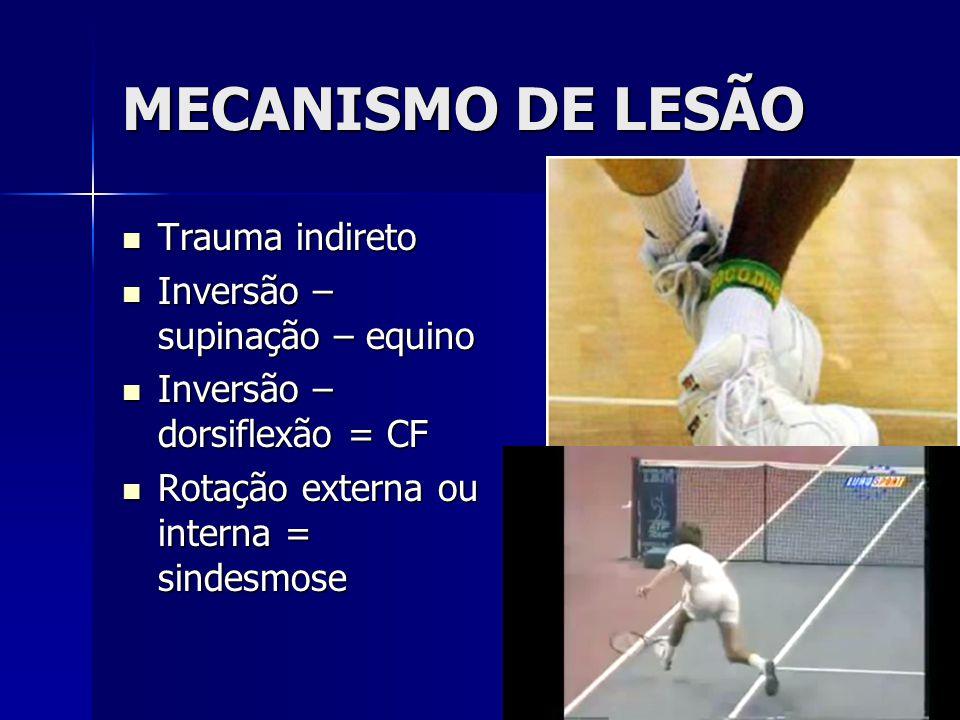 MECANISMO DE LESÃO Trauma indireto Inversão – supinação – equino