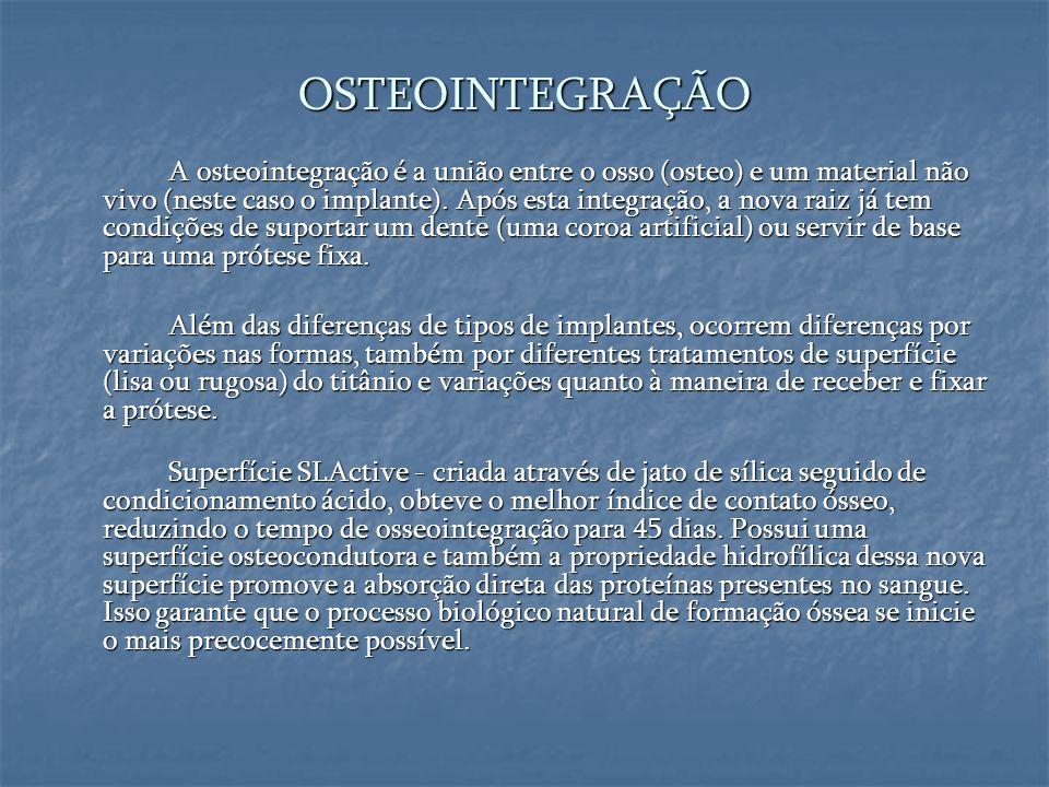 OSTEOINTEGRAÇÃO