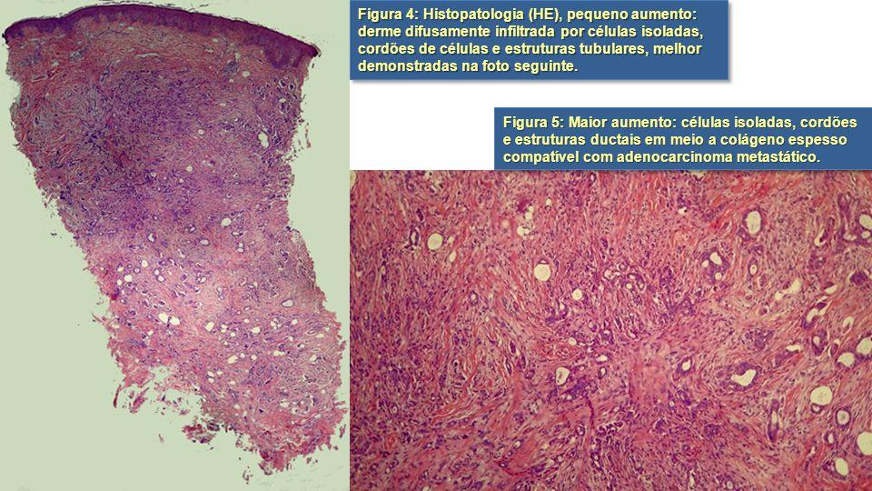 Figura 4: Histopatologia (HE), pequeno aumento: derme difusamente infiltrada por células isoladas, cordões de células e estruturas tubulares, melhor demonstradas na foto seguinte.