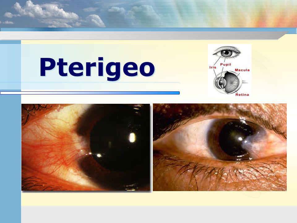 Pterigeo
