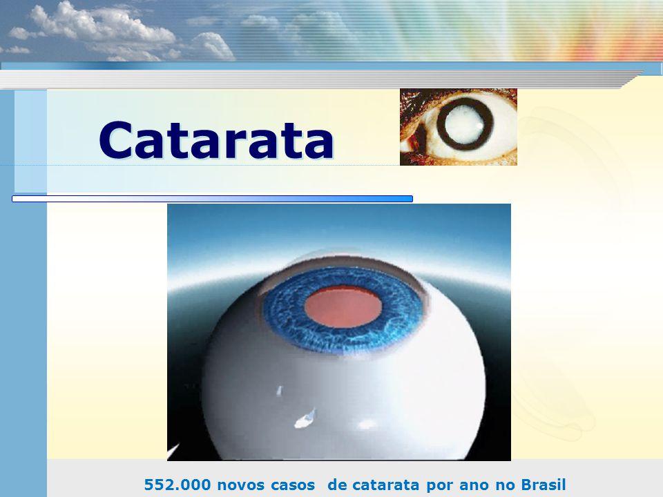 552.000 novos casos de catarata por ano no Brasil