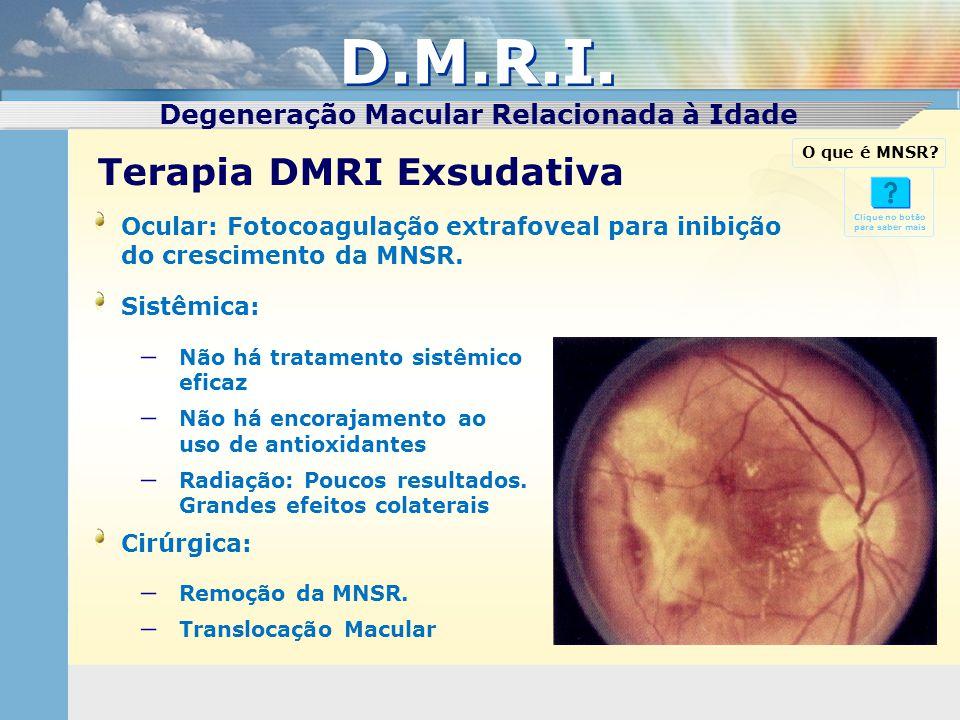 D.M.R.I. Terapia DMRI Exsudativa