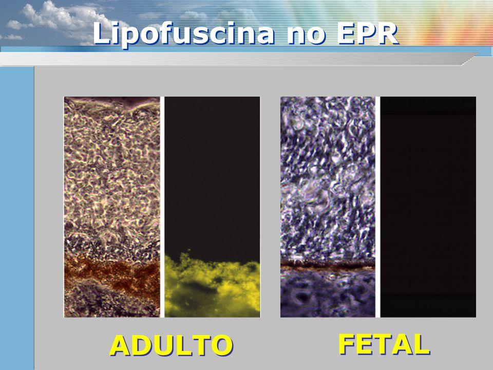 Lipofuscina no EPR ADULTO FETAL