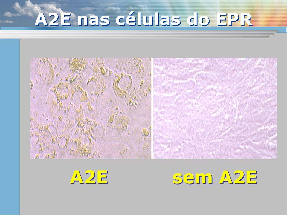 A2E nas células do EPR A2E sem A2E