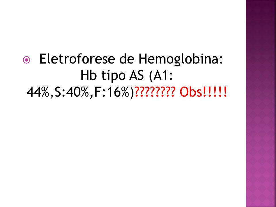 Eletroforese de Hemoglobina: Hb tipo AS (A1: 44%,S:40%,F:16%) Obs!!!!!