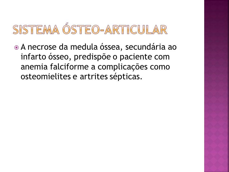 Sistema ósteo-articular