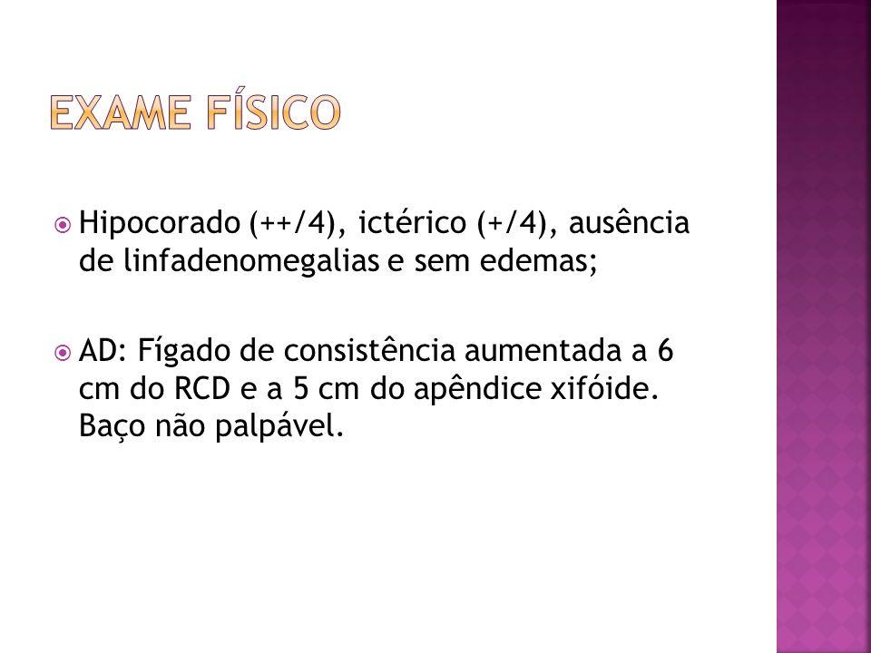Exame físico Hipocorado (++/4), ictérico (+/4), ausência de linfadenomegalias e sem edemas;