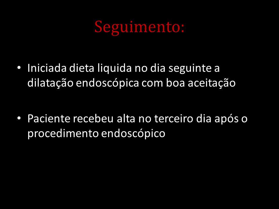 Seguimento: Iniciada dieta liquida no dia seguinte a dilatação endoscópica com boa aceitação.
