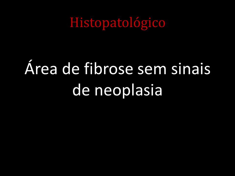 Área de fibrose sem sinais de neoplasia