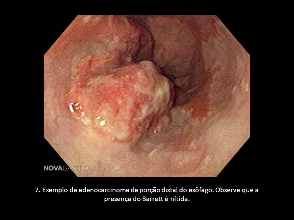 7. Exemplo de adenocarcinoma da porção distal do esôfago