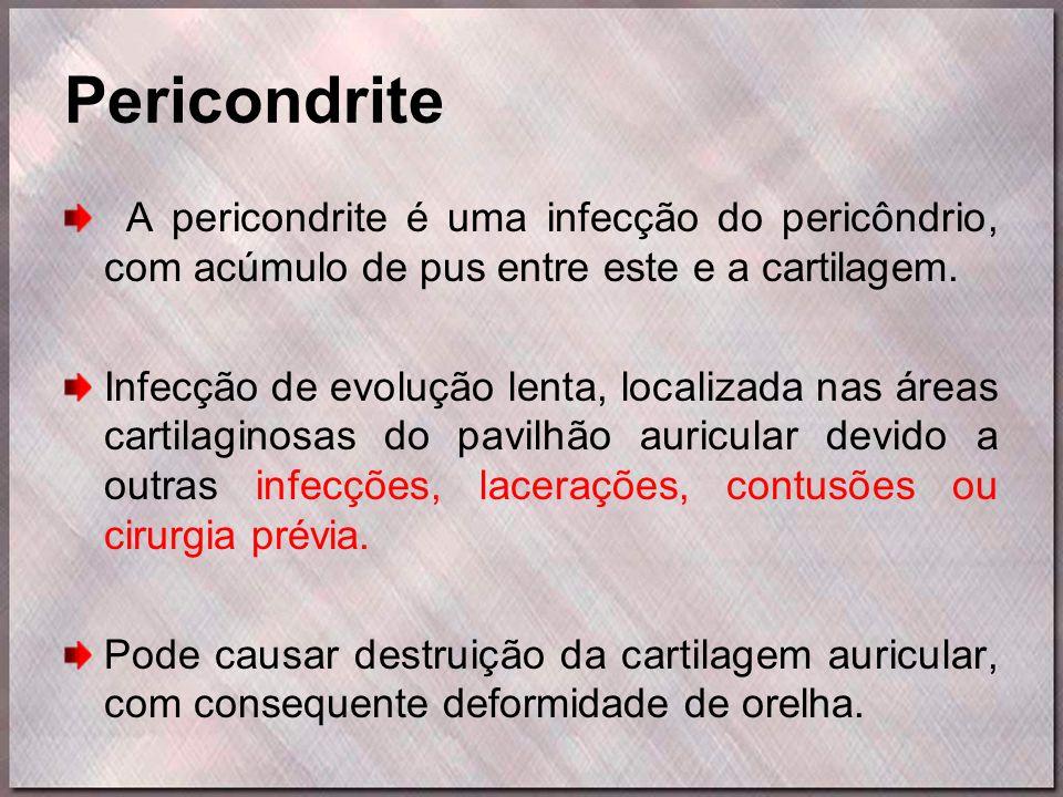 Pericondrite A pericondrite é uma infecção do pericôndrio, com acúmulo de pus entre este e a cartilagem.