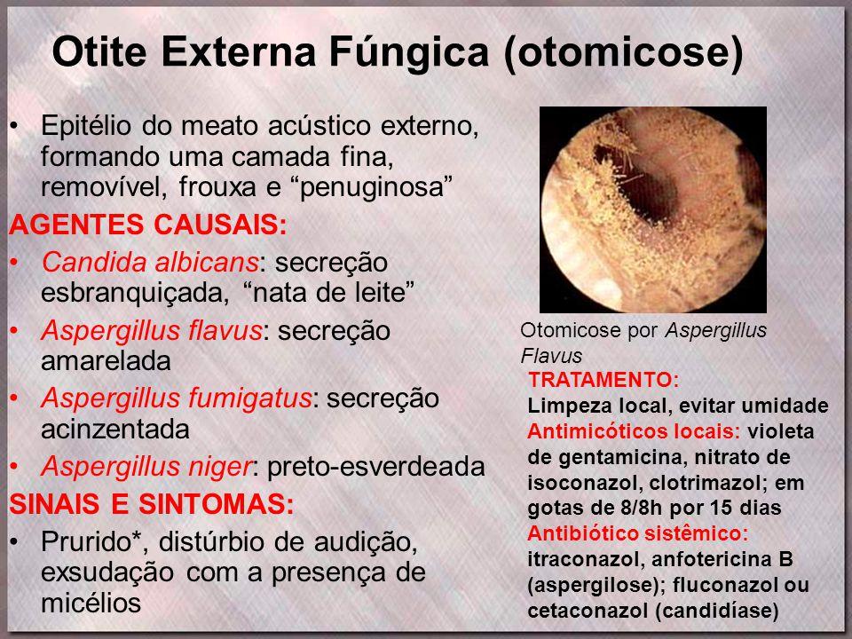 Otite Externa Fúngica (otomicose)