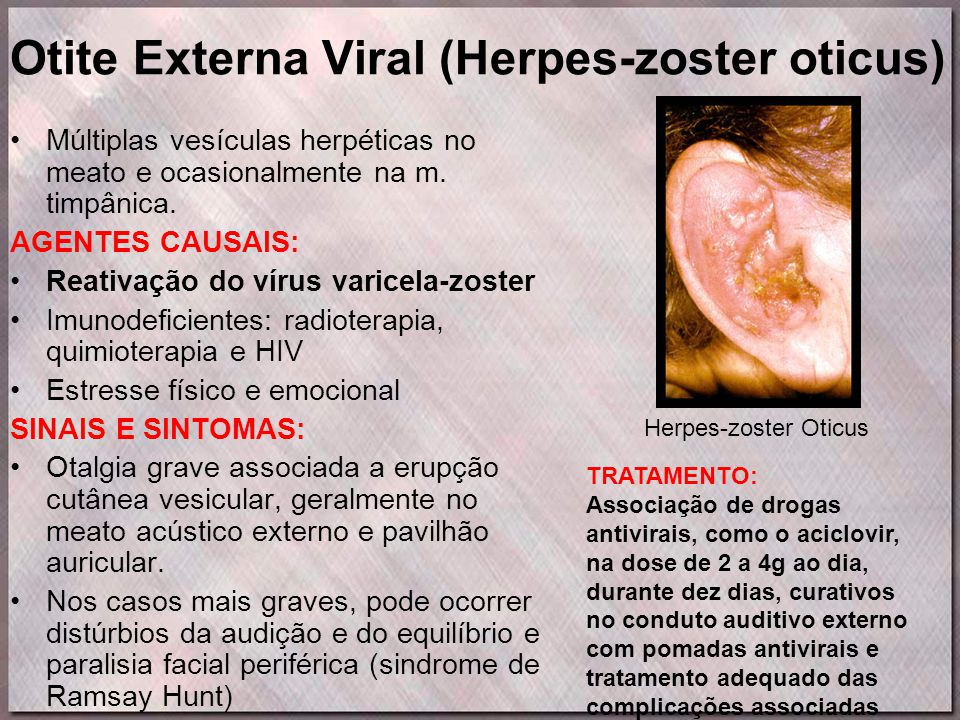 Otite Externa Viral (Herpes-zoster oticus)