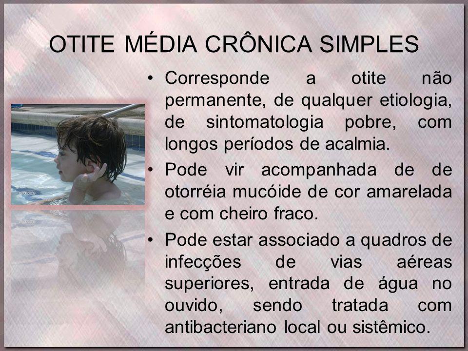 OTITE MÉDIA CRÔNICA SIMPLES