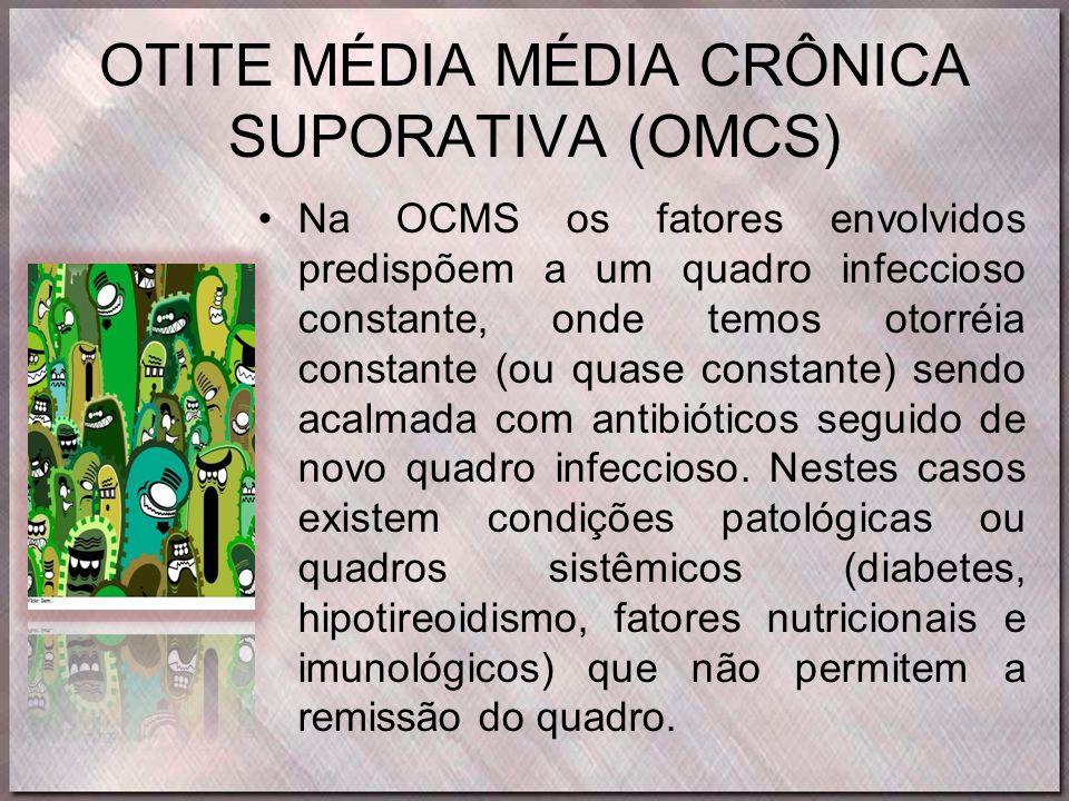 OTITE MÉDIA MÉDIA CRÔNICA SUPORATIVA (OMCS)