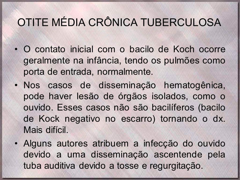 OTITE MÉDIA CRÔNICA TUBERCULOSA