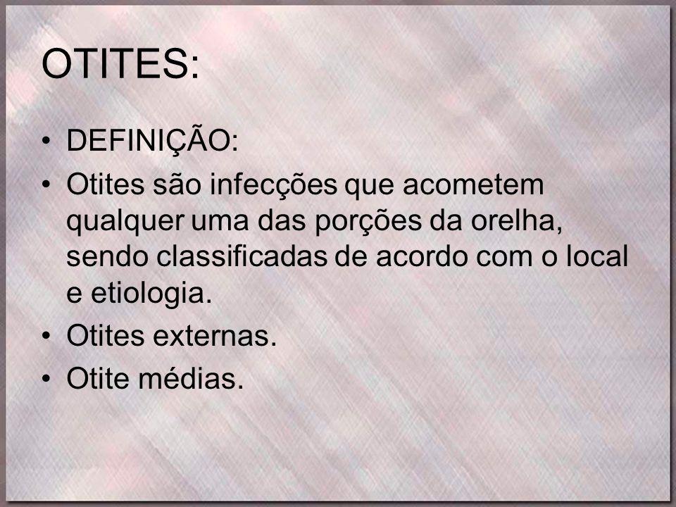 OTITES: DEFINIÇÃO: Otites são infecções que acometem qualquer uma das porções da orelha, sendo classificadas de acordo com o local e etiologia.