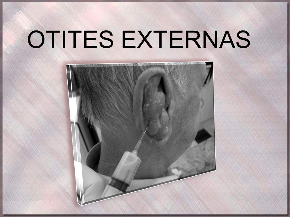OTITES EXTERNAS