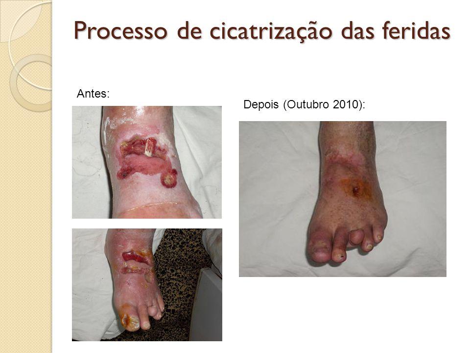 Processo de cicatrização das feridas