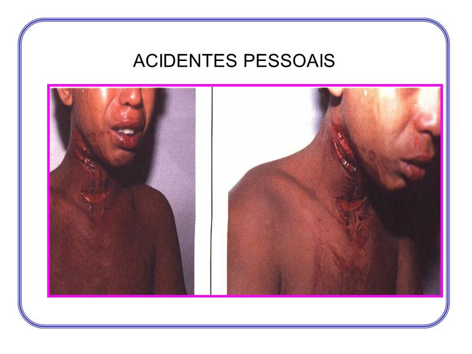 ACIDENTES PESSOAIS
