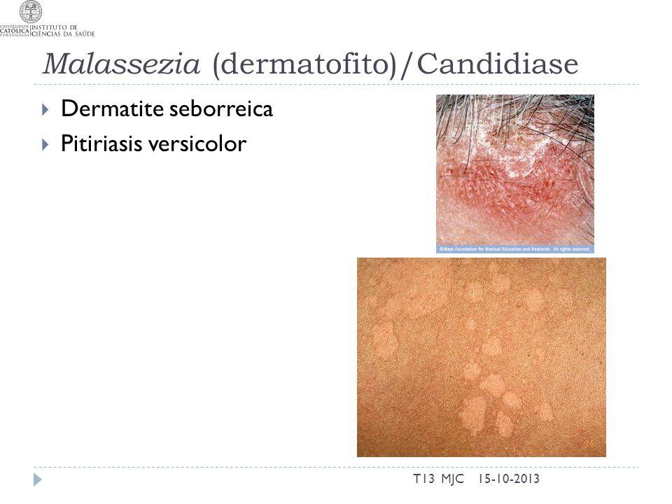 Malassezia (dermatofito)/Candidiase