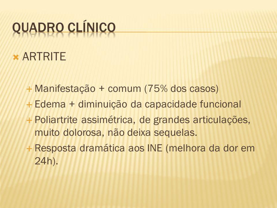 Quadro clínico ARTRITE Manifestação + comum (75% dos casos)