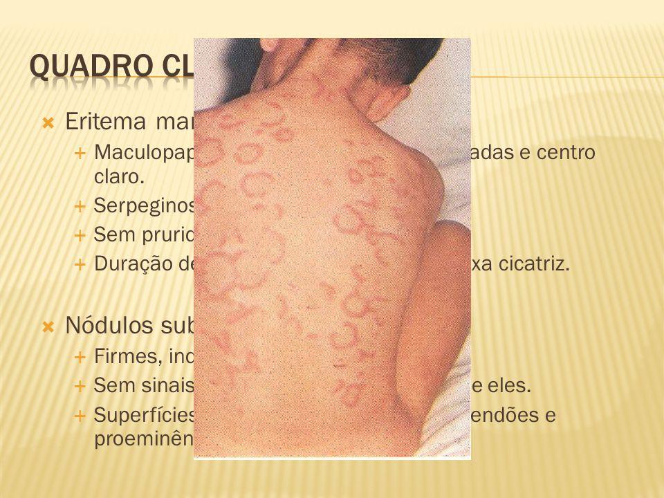 Quadro clínico Eritema marginatum Nódulos subcutâneos