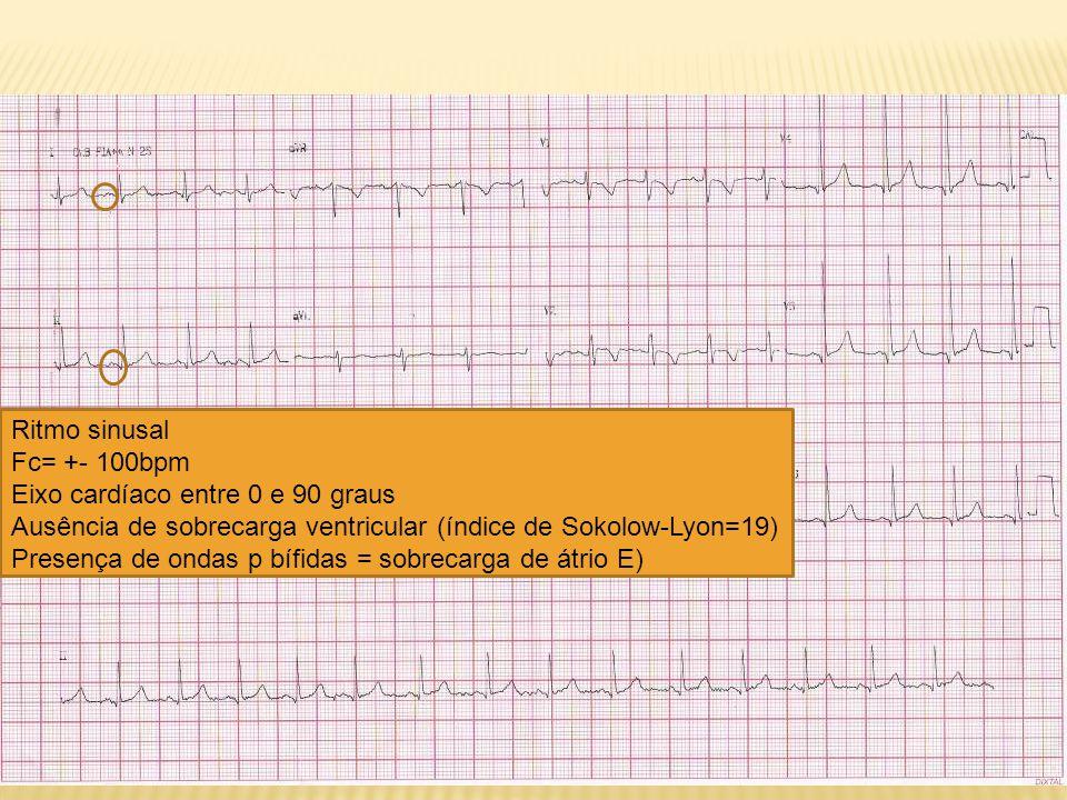 Ritmo sinusal Fc= +- 100bpm. Eixo cardíaco entre 0 e 90 graus. Ausência de sobrecarga ventricular (índice de Sokolow-Lyon=19)
