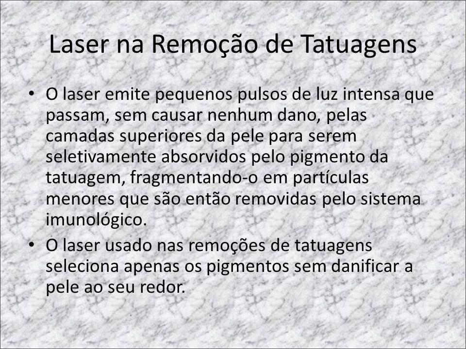 Laser na Remoção de Tatuagens
