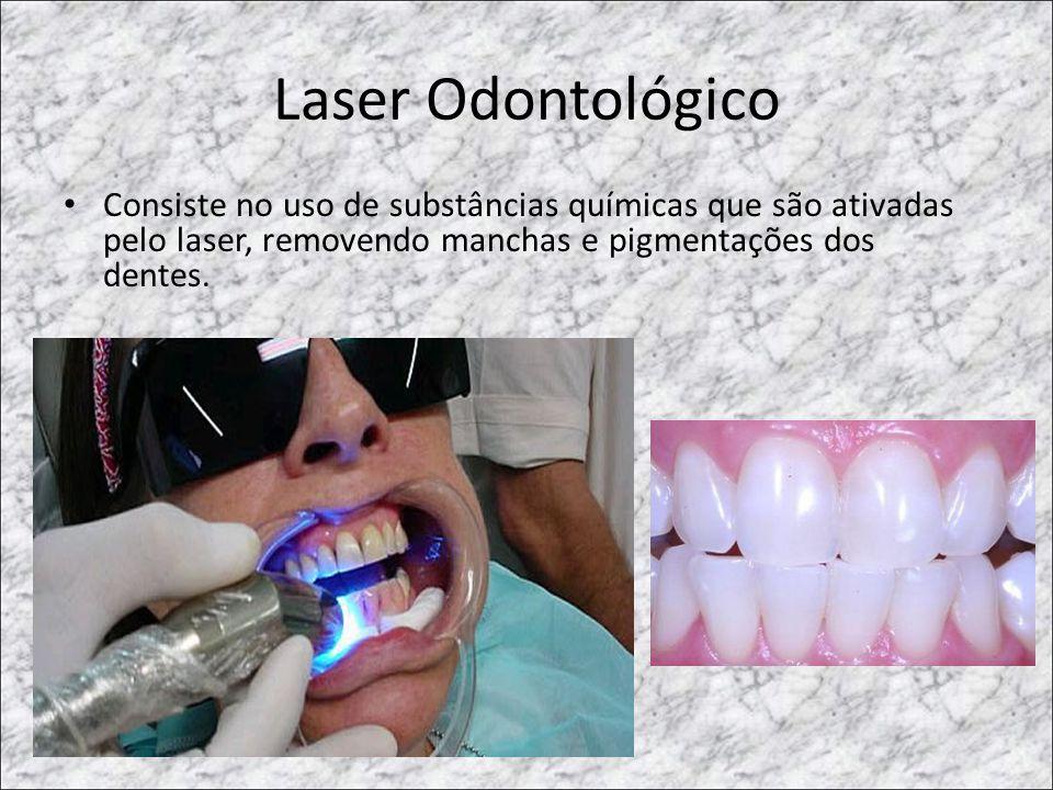 Laser Odontológico Consiste no uso de substâncias químicas que são ativadas pelo laser, removendo manchas e pigmentações dos dentes.