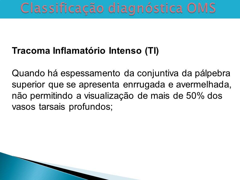 Classificação diagnóstica OMS