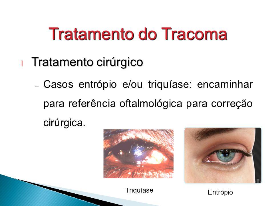 Tratamento do Tracoma Tratamento cirúrgico