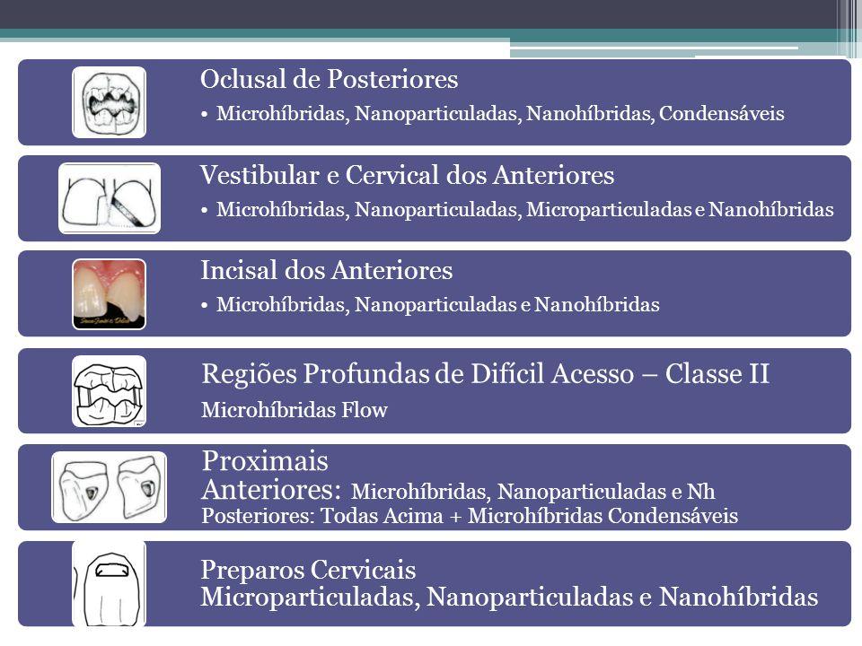 Oclusal de Posteriores
