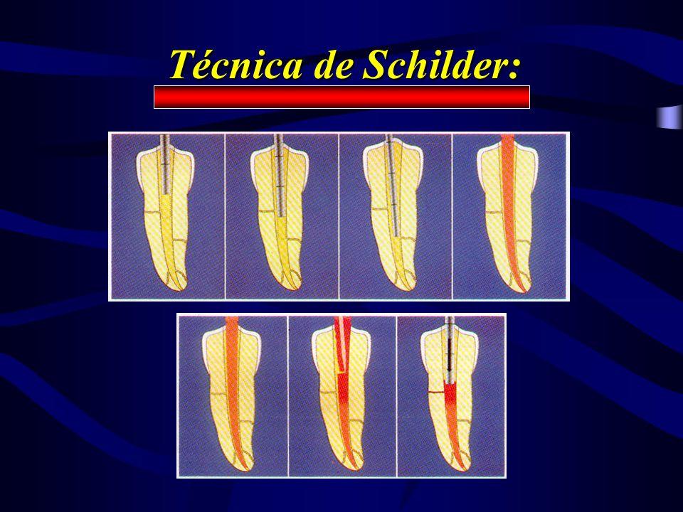 Técnica de Schilder: