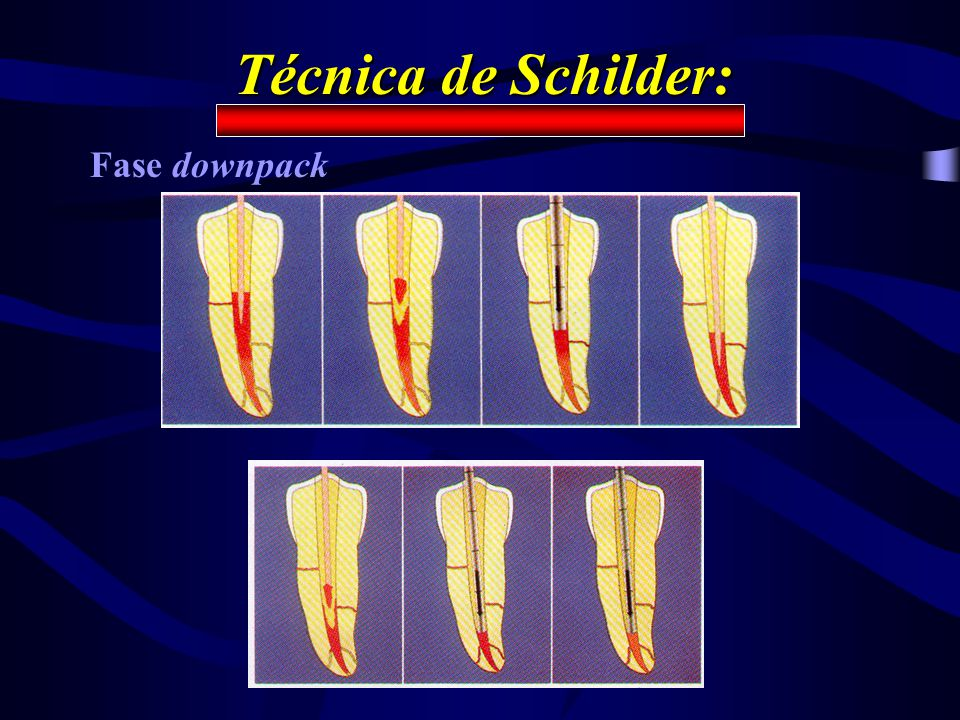 Técnica de Schilder: Fase downpack
