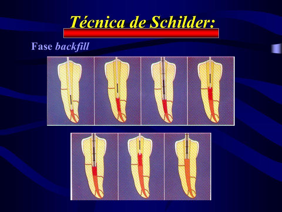 Técnica de Schilder: Fase backfill