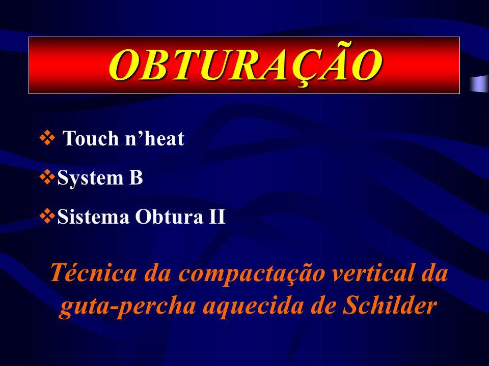 Técnica da compactação vertical da guta-percha aquecida de Schilder