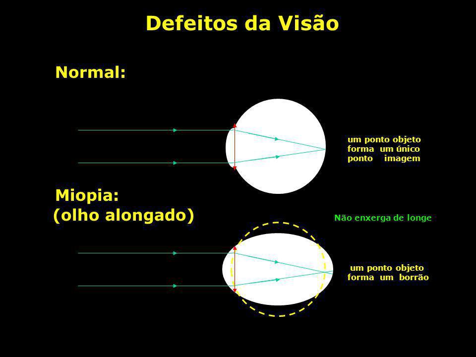 Defeitos da Visão Normal: Miopia: (olho alongado)